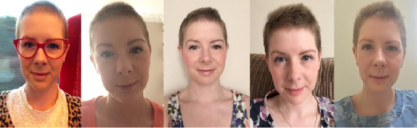 Stimulating hair growth afterchemo