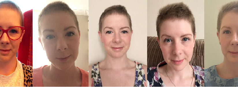 Stimulating hair growth after chemo